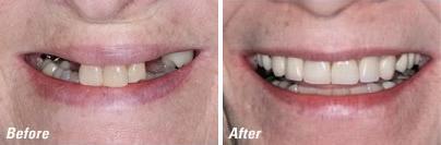 Dental Implants - Advanced Dentistry by Design Carson City NV
